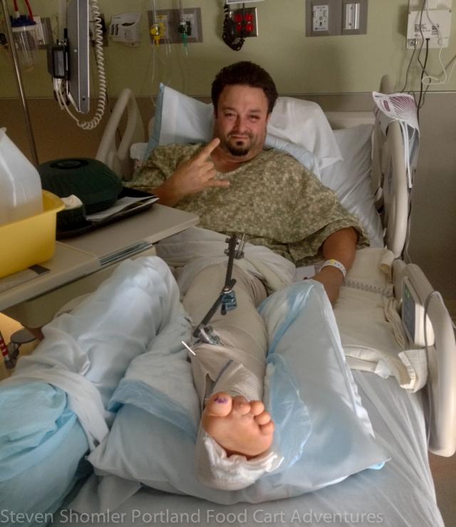 Jason Moreno's Leg Broken below the knee in three places 2