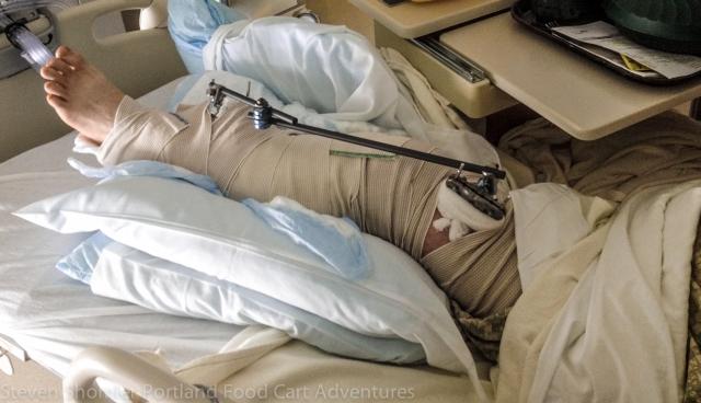 Jason Moreno's Leg Broken below the knee in three places